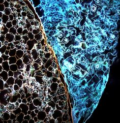 Fluorescent plant cells under microscope