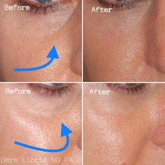 lip filler before and after Read our guide to getting undereye filler before booking a dermatologist appointment and find out how it works, how long it lasts, and who it wont work on. Under Eye Fillers, Cheek Fillers, Botox Fillers, Dermal Fillers, Fillers For Face, Cosmetic Fillers, Botox Under Eyes, Under Eye Wrinkles, Hyaluron Filler