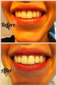 Super DIY Teeth Whitening  Squeeze a small amount of toothpaste into a tiny container, followed by 1 teaspoon baking soda 1 teaspoon hydrogen peroxide 1/2 teaspoon water  Mix those ingredients together, and brush your teeth thoroughly for two minutes. Use this once a week until you are happy with the shade of white. Then reduce to using once a month.