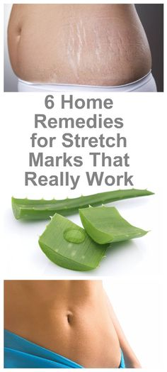6-powerful-home-remedies-for-stretch-marks-that-really-work-2