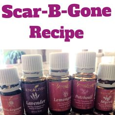 There's a natural scar treatment recipe known in the Young Living community as Scar- B -Gone that has helped many people to get rid of their scars. Gary Young gave this … Continue Reading →