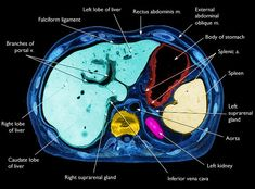 liver anatomy ct
