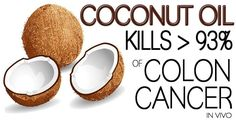 Coconut Oil Kills of Colon Cancer Cells In Vivo - Healthy Holistic Living this is an interesting piece because many autistic children also have very low glutathione levels Natural Cancer Cures, Natural Cures, Natural Health, Natural Oils, Colon Cancer, Cancer Cells, Breast Cancer, Healthy Holistic Living, Coconut Oil