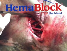 #Jugular #HemaBlock #Emma #Hema #Blood #idaemi #iNeedADoctor #Eminem #Call #DrHouse #GoGoGo #idaPacino #Call #HughLaurie #HollywoodNow 2 #Come #Downey #Mann #idaMann #Who s #Hurt #idaCash #AndSheWas #Out of #Cash #ChallengeSo #idampan #idaBieber #WhatDoYouMean #IAM #Confucius #Watts #JugularBlock #Block The #internal j #vein #paired #jugularvein #collects #blood #fromm #brain & #superficial #parts of the #face n #neck The #vein #runs in #carotid #sheath w t #common carotid  #artery #vagus…