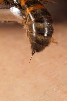 the bee's stinger...when the honeybee stings,  she will die. The stinger is literally ripped out of the bee's body.
