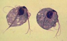 ezek gyűrűs helminták Régóta kezelem a Trichomonas t
