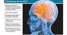 ECV isquémico: diagnóstico y tratamiento