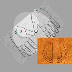 Clinical analysis confirms that TriOrigin 'colors' acupuncture may be effective option without having any side effect as concept is only on palm. Untreated, it can lead to serious heart and blood v…