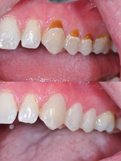 Tooth colored (composite) fillings look very natural.  There are many shades to choose from to match every color tooth.