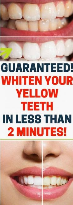 Whiten Your Yellow Teeth In Less Than 2 Minutes! Source by Related posts: How To Whiten Yellow Teeth & Remove Plaque & Tartar Buildup! How to Whiten Teeth Guaranteed in Devamı… Pole Dancing, Causes Of Tooth Decay, Baking Soda Shampoo, Whitening Kit, Skin Whitening, Oral Health, Health Care, Health Facts, Autumn Look