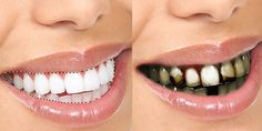 ... on Pinterest | Dental, Cosmetic dentistry and Teeth whitening