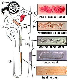 cast in urine | So what are the basickinds of casts ? Back