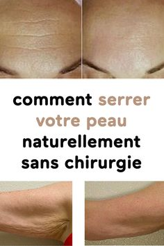 comment serrer votre peau naturellement sans chirurgie Anti Cellulite, Good To Know, Detox, Massage, Facial, Health Fitness, Hair Beauty, Muscle, Medical