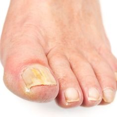 Home Remedy For Toe Fungus