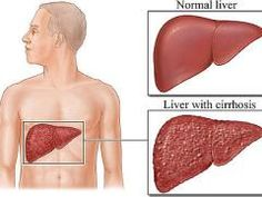 Cirrhosis diet: Cirrhosis is a disease which involves irreversible scarring of the liver. It occurs after many years of liver tissue inflammation. The causes of cirrhosis includes excessive alcohol intake, viral hepatitis B and C, exposure to. Liver Cancer, Liver Disease, Acute Disease, Kidney Disease, Natural Treatments, Natural Cures, Natural Health, Liver Function Test, Hepatitis B