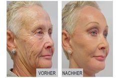 Oma überrascht alle Ärzte mit Ihrer neuartigen Anti-Aging Methode: Erstaunliche Resultate bereits nach 14 Tagen!