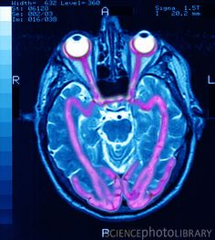 Sight. MRI of the sight zone in the human brain, is this why you go slightly blind if you are hit in the back of this head or you sit up too quickly?