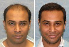 B4 & After Hair Transplant