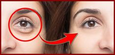 olheiras Remover, How To Remove, How To Make, Facial, Hoop Earrings, Nature, Hair, Beauty, Jewelry