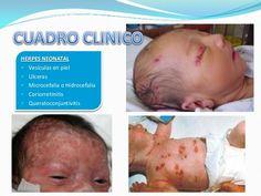 coriorretinitis neonatal - Buscar con Google