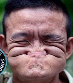 L'homme le plus moche du monde s'appelle Tang Shuquan