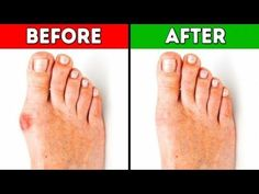 ◄◄4 Effective Ways to Get Rid of Bunions | Ease Your Bunions In Just 10 Days! ◄◄ - YouTube