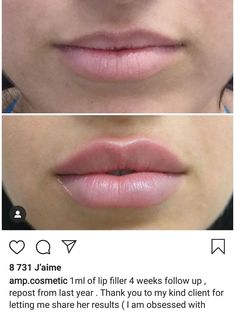 Rhinoplasty, or surgery to re-shape the nose, is one of the most common of all cosmetic surgery treatments. Face Fillers, Botox Fillers, Dermal Fillers, Relleno Facial, Botox Lips, Lip Injections Juvederm, Hyaluron Filler, Facial Aesthetics, Eyelashes