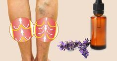 Water Retention In Your Legs and Ankles? These Essential Oils Can Help Reduce The Bloating