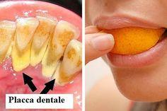 La placca dentale è uno strato giallo che si forma sulla superficie dei denti a causa dell'accumulo di resti di cibo, batteri e germi.