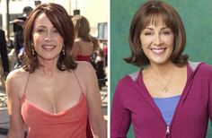 Patricia Heaton Plastic Surgery Before & After