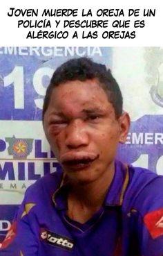 Las alergias son cosa seria - Malainfluencia