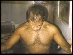 Patient shows his progress after recieving a hair transplant. Hair Transplant, Videos, Youtube, Youtubers, Video Clip, Youtube Movies
