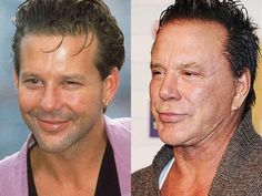 before after forehead Mickey Rourke Plastic Surgery Before & After - plasticsurgerytal. Mickey Rourke Plastic Surgery Before & After - plasticsurgerytal. Botched Plastic Surgery, Bad Plastic Surgeries, Plastic Surgery Gone Wrong, Celebrity Plastic Surgery, Marlo Thomas, Kim Basinger, Mickey Rourke Plastic Surgery, Botox Forehead, Worst Celebrities