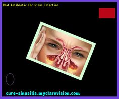 What Antibiotic For Sinus Infection 091210 - Cure Sinusitis
