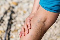 Varicose eczema, or stasis dermatitis: Symptoms, causes, and treatment Varicose Vein Remedy, Varicose Veins Treatment, Urinary Incontinence, Peripheral Neuropathy, Varicose Veins During Pregnancy, Lunge, Mosquitos, Natural Remedies, Get Skinny