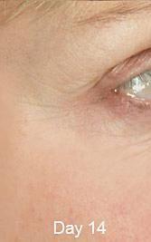 Total Wrinkle Miracle Womens Health Magazine, Anti Aging Serum, Skin Care Tips, New Skin, Christie Brinkley, Shape Magazine, Dr Oz, Human Mouth, Human Eye