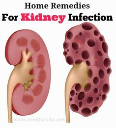 Home Remedies for Kidney Infection Treatment | Medi Tricks