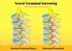 Neural Foraminal Narrowing