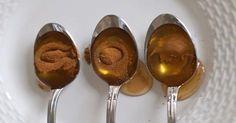 La miel y la canela son una poderosa combinación que puede tratar muchas afecciones y enfermedades. Incluso se ha aprobado por expertos en salud y nutricionistas. Esta mezcla totalmente natural se ha utilizado como un remedio popular eficiente durante miles de años. A saber, los egipcios lo usaban en el tratamiento de las heridas, los…