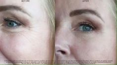 It Works! WOW wipes out your wrinkles! In 45 seconds you will start to feel it working, and in 45 more seconds all you will be able to say is WOW! #Wow