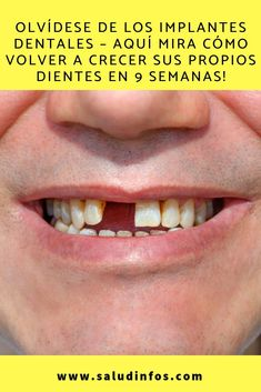 Healthy Tips Diabetes Coco Human Mouth Teeth Fe Health Fitness Health Care Health Tips Dr Ozz, Human Mouth, Plastic Bottle Art, Diabetes, Healthy Tips, Home Remedies, Anatomy, Teeth, The Cure