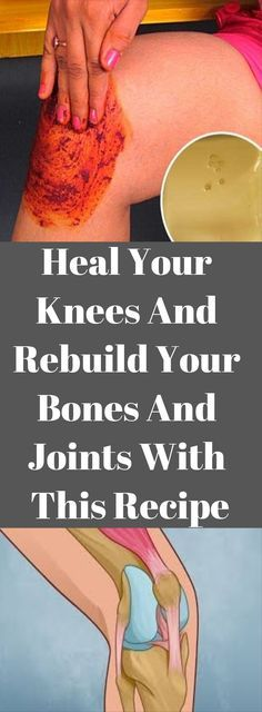 Heal Your Knees And Rebuild Your Bones And Joints With This Recipe – Healthy Magazine