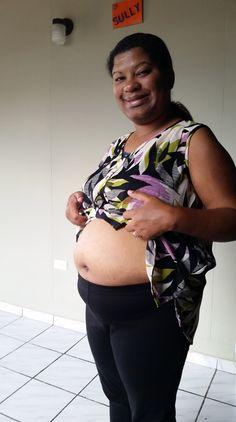 Prevenir la preeclampsia en el embarazo