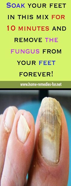 Soak your feet in this mix for 10 minutes and remove the fungus from your feet forever!