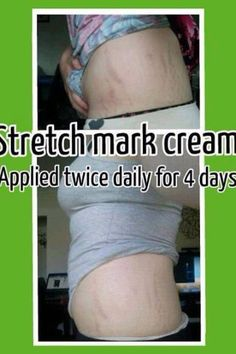 Body wrap to reduce stretch marks amazing!!