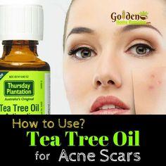 Tea Tree Oil For Acne Scars: How To Use Tea Tree Oil For Acne Scars, Remove Acne Scars Fast!