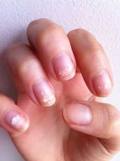 Repairing nails after gel manicures