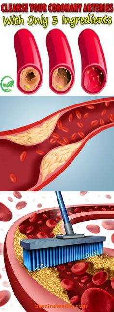 Clean Coronary Artery With Only 3 Ingredients - If you have poor circulation, this is the recipe for you! The same goes for those who often get sick because of poor immunity, and for those who have problems with blood vessels.
