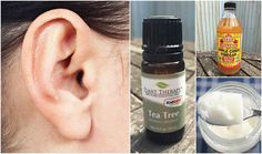 """Can We Send You Our Free Special Report: """"100 Ways To Use Essential Oils To Change Your Life""""? Many people practice ear wax removal as part of their regular hygiene routine, but unfortunately, most tend to use cotton swabs or Q-tips, bobby pins, or other objects in an attempt to get to it and clean out the excess ear wax. When done incorrectly, that can… [read more]"""