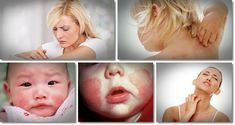 Top 12 Natural Home Remedies For Eczema